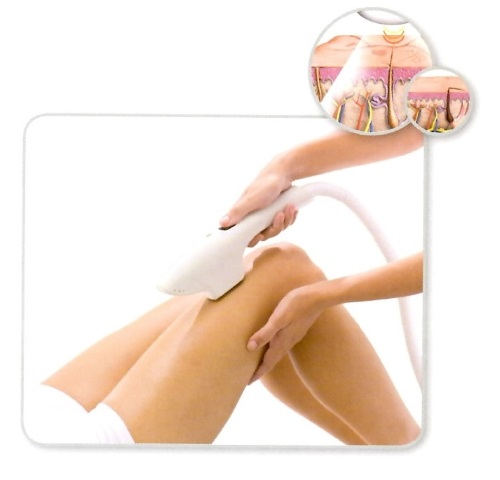 I.P.L hair removal, ipl hair removal, ipl hair removal adelaide, ipl hair removal reviews, ipl hair removal prices, ipl hair, ipl acne treatment, ipl acne, ipl acne treatment adelaide, ipl acne treatment reviews, ipl acne treatment prices, ipl skin, ipl skin rejuvenation, ipl skin rejuvenation adelaide
